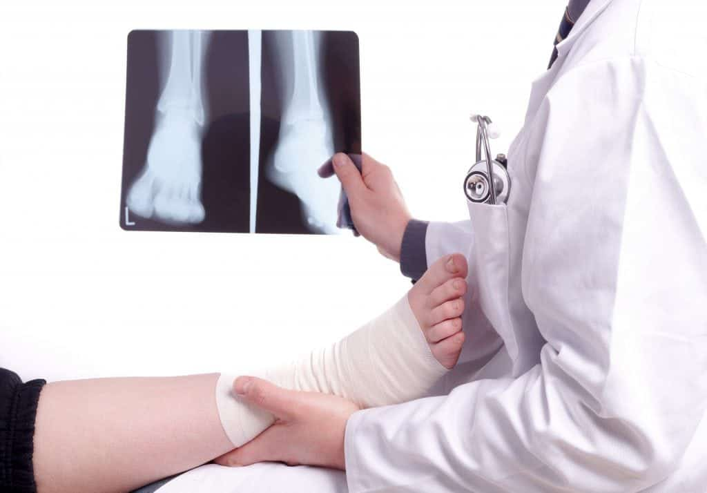 Alternatives-to-Ankle-Replacement-Surgery