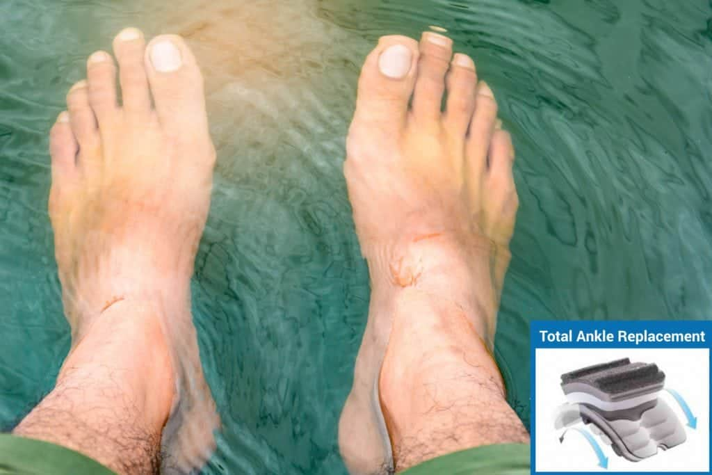 Total-Ankle-FAQ-blog